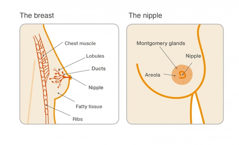 intraductal papilloma breast pain