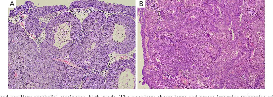 inverted papillary urothelial carcinoma cancer endometrial cauze