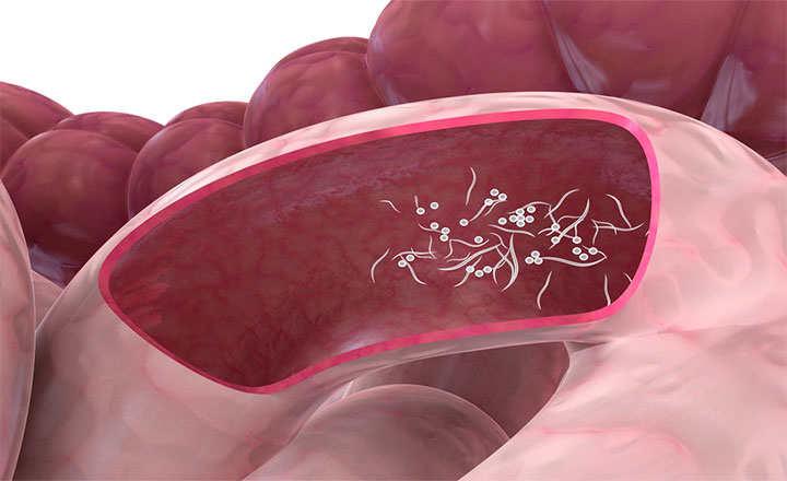 Parazitozele intestinale la copii | Medlife