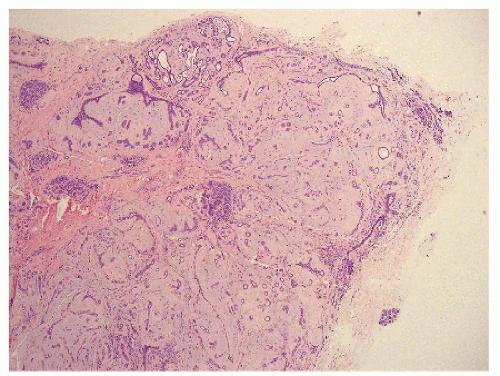 papillary sclerosing lesion breast papillomavirus giraffe