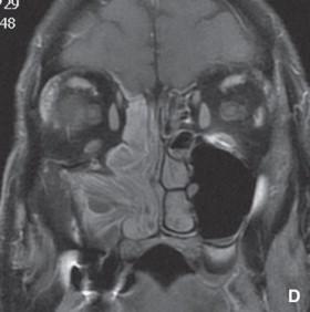 papilloma invertito mascellare detoxifiere ficat pastile