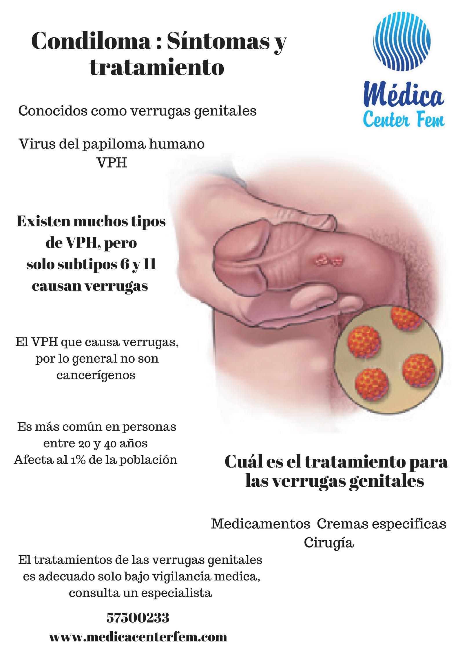 Hpv genital tratamiento, Nucșoară varicele tinctură