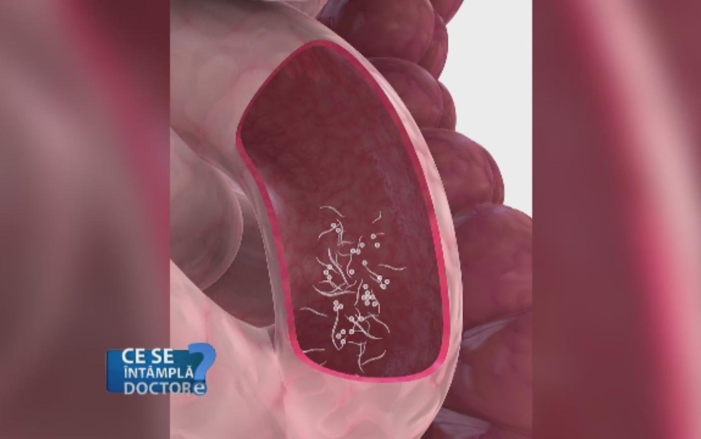 paraziti intestinali analize