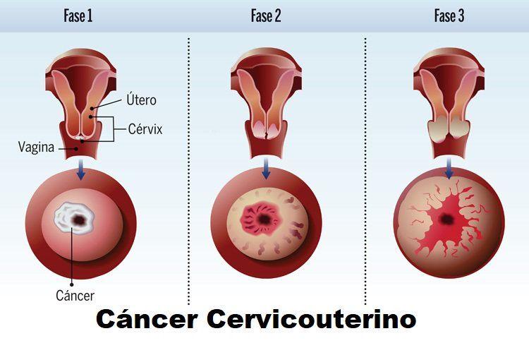 que es cancer cervicouterino hpv virus symptoms