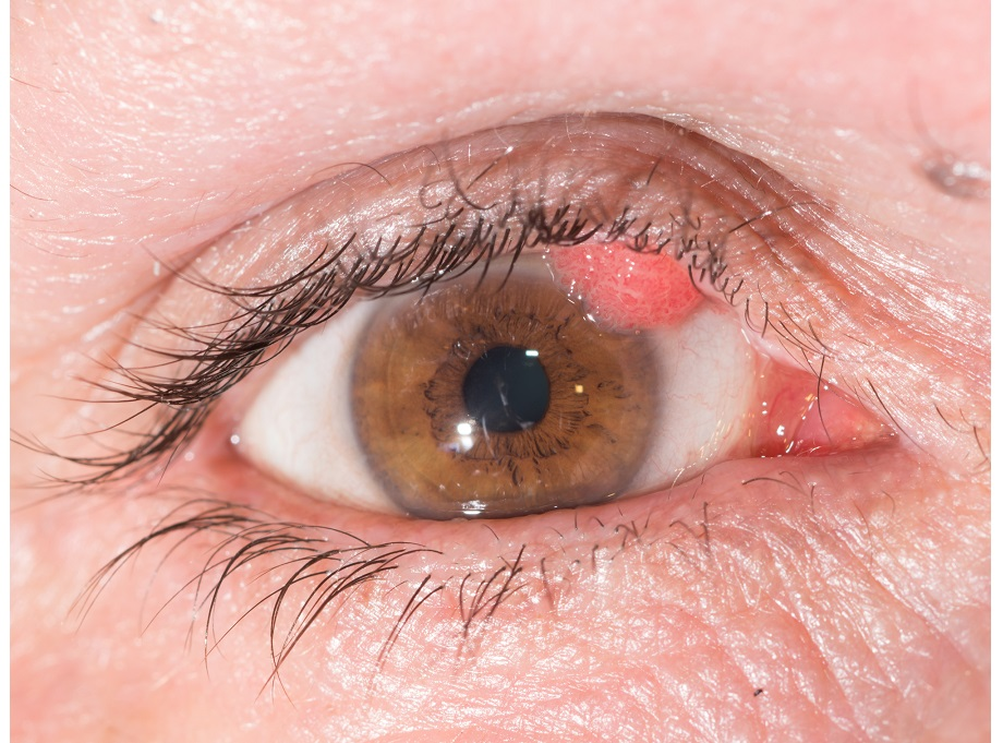 wart on eyelid how to remove